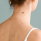 How Painful Is Surgical Mole Removal?