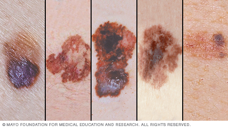 abcd in different styles asymmetric moles and melanoma detailed guidelines scary 10642