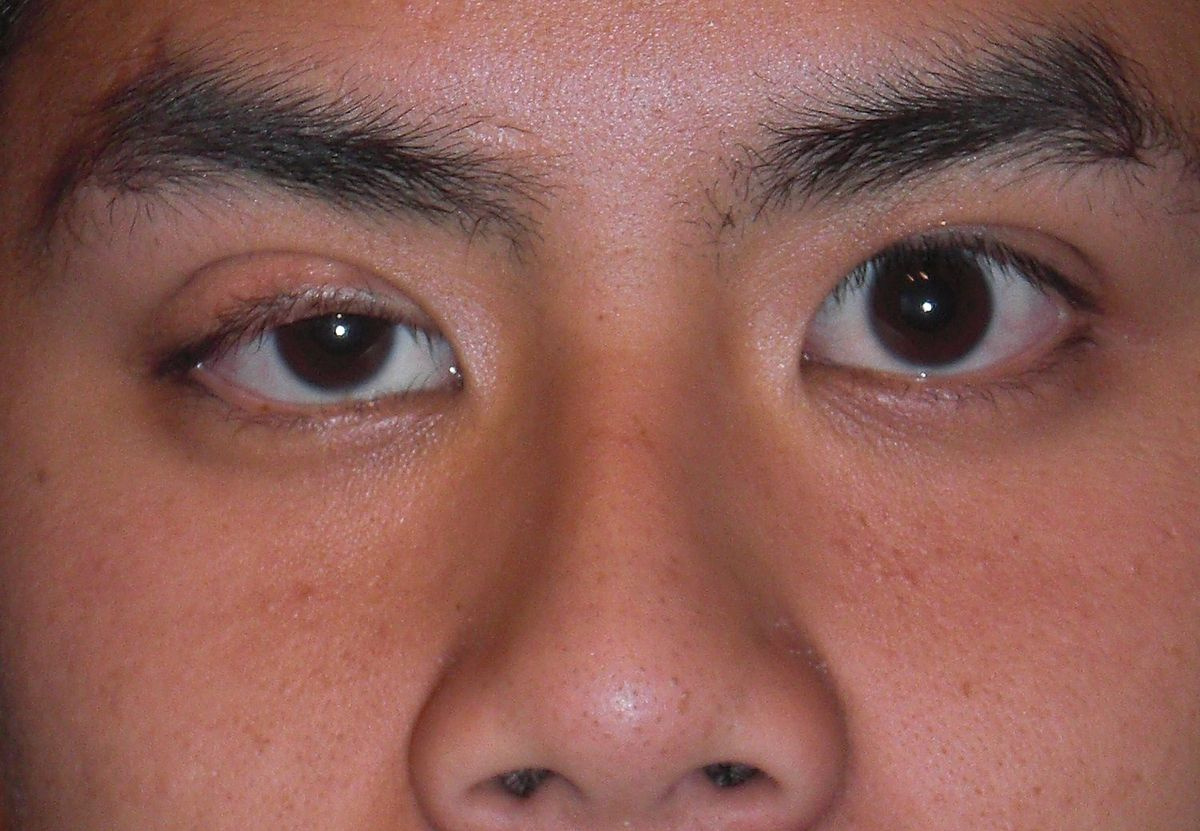 What Is Ptosis and Miosis?