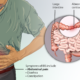 Can IBS Cause Ribbon Stools?