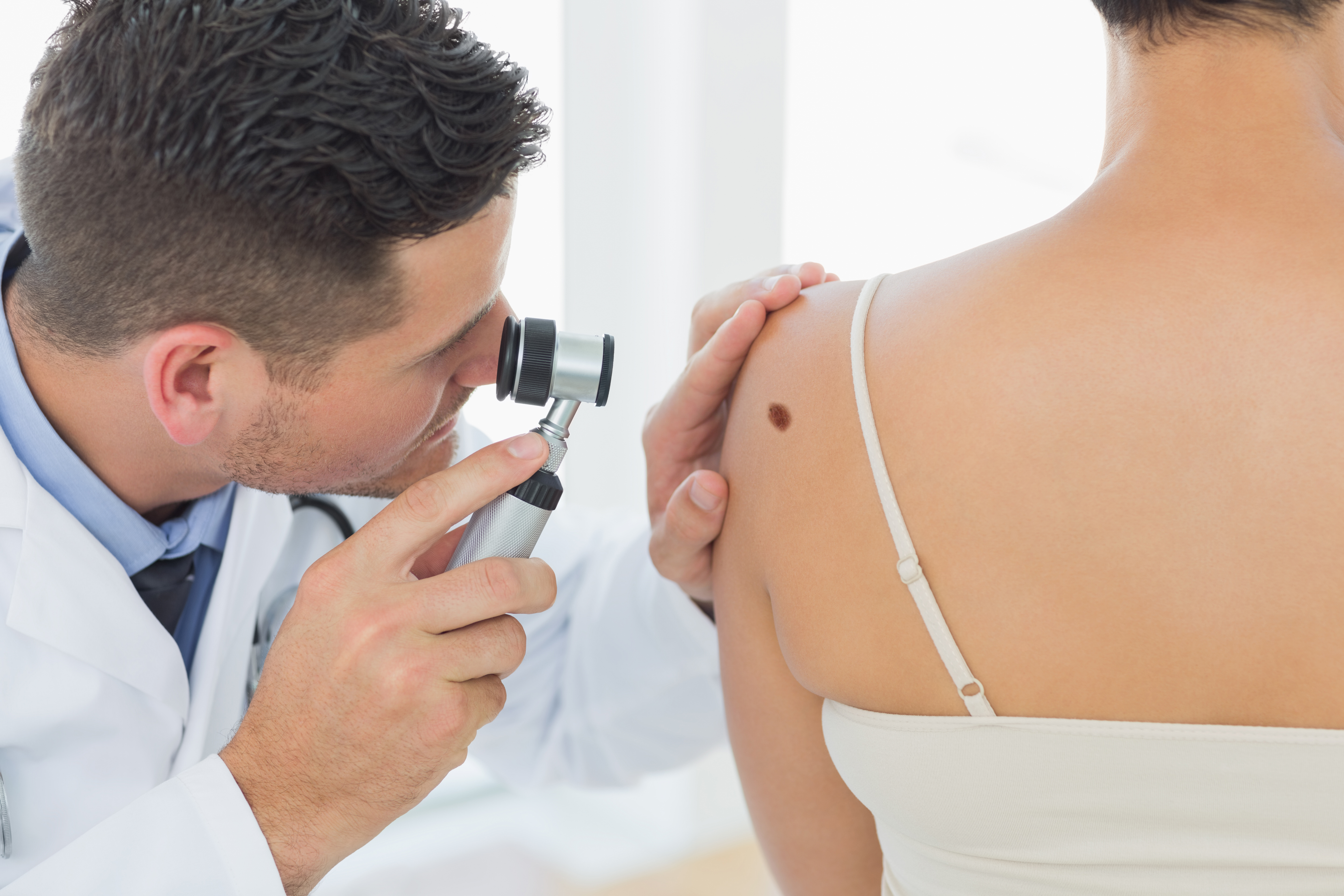 Can a Changing Mole Be Benign or Is It Always Melanoma?