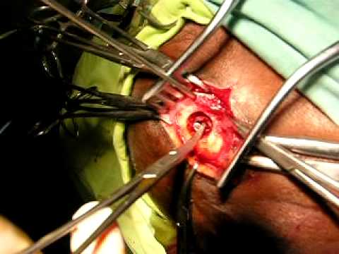 Burr Hole Subdural Hematoma Drain and Headaches, Neck Pain