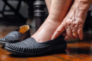 Ankle Swelling in the Elderly: Causes & Solutions