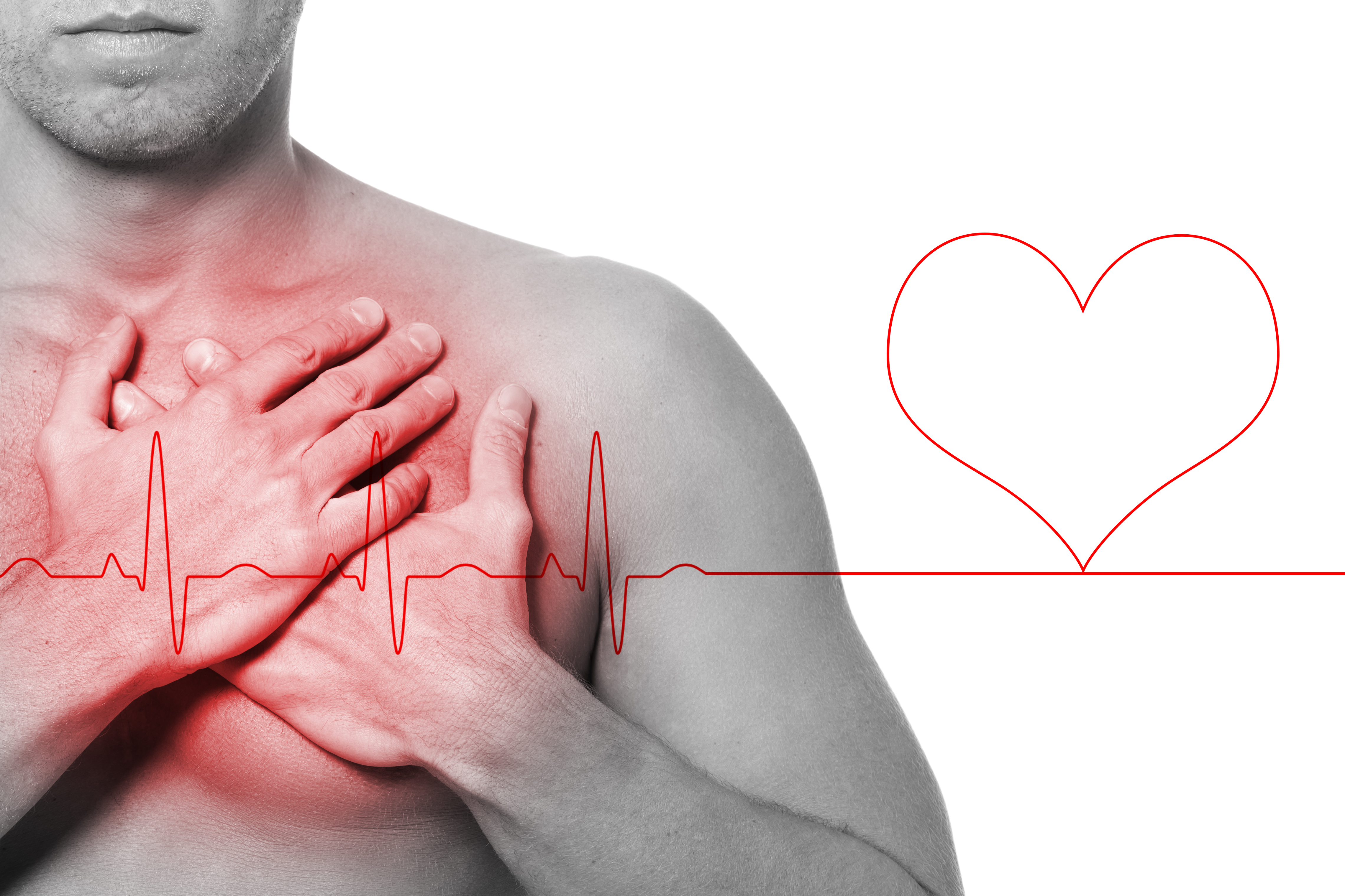 PVCs for Two Minutes Straight: Does this Mean Heart Problem?