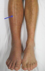 Strongest Risk Factor for a Deep Vein Thrombosis