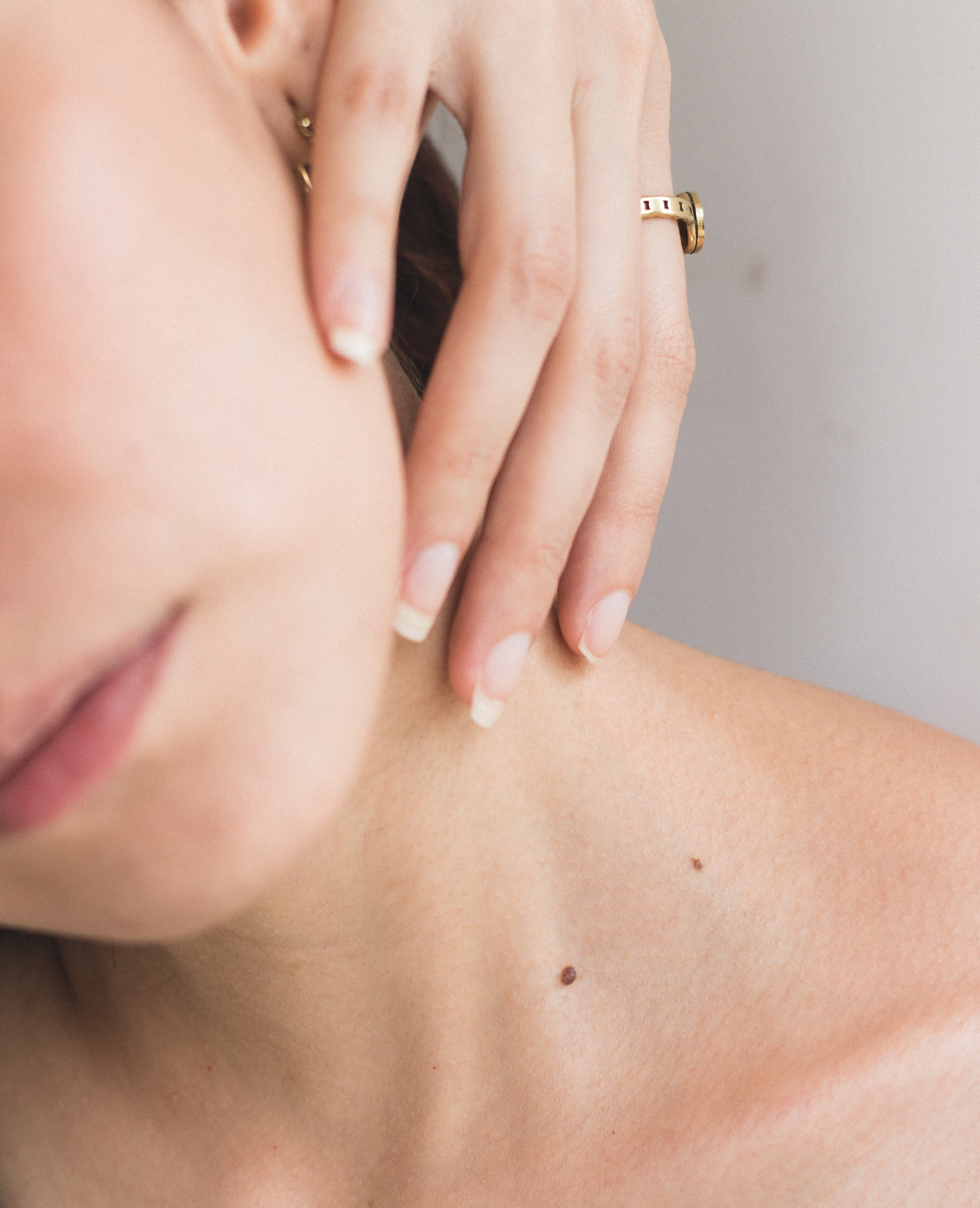 How to Check if Your Moles Are Getting Bigger
