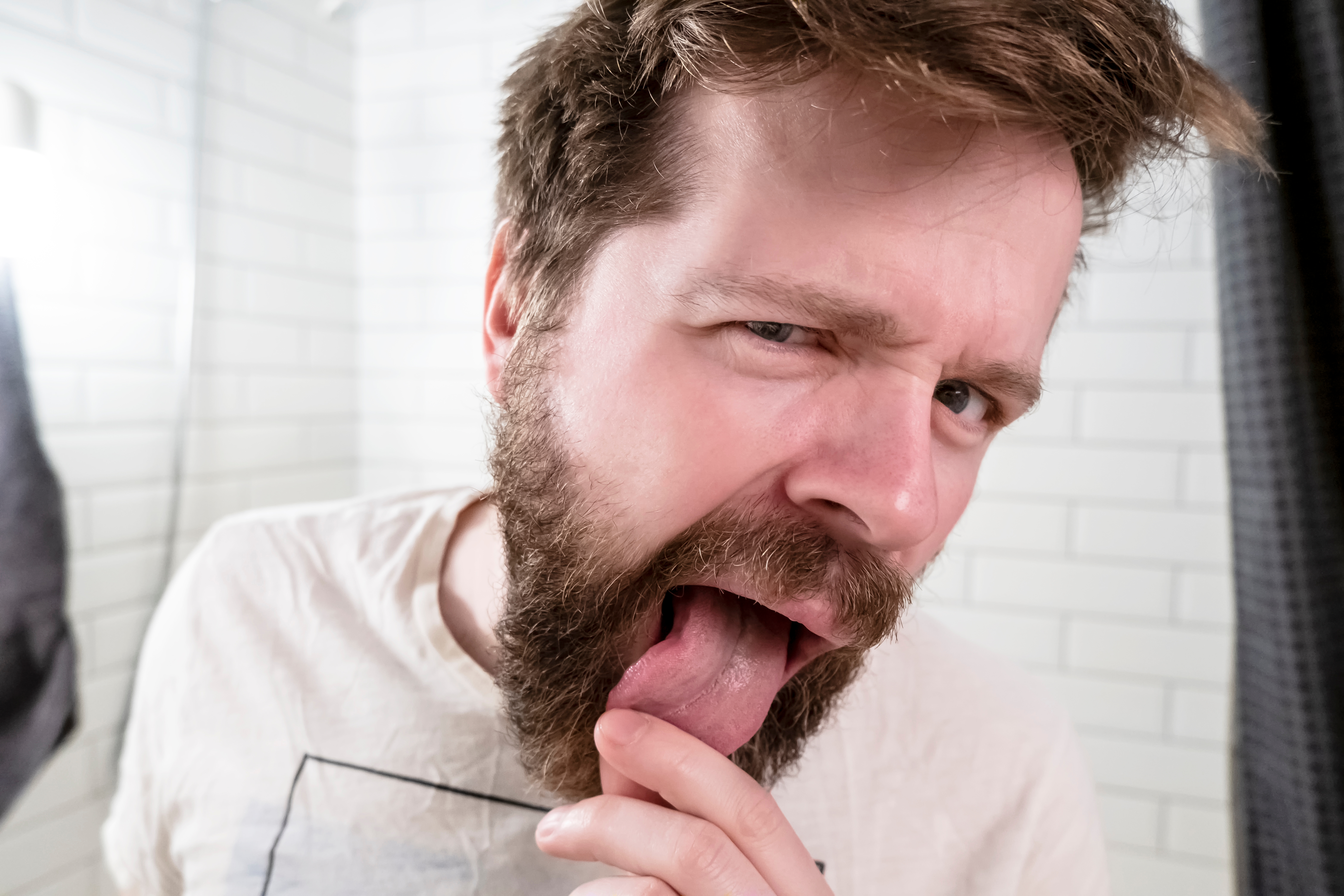 What Bulbar Tongue Twitching Really Looks Like