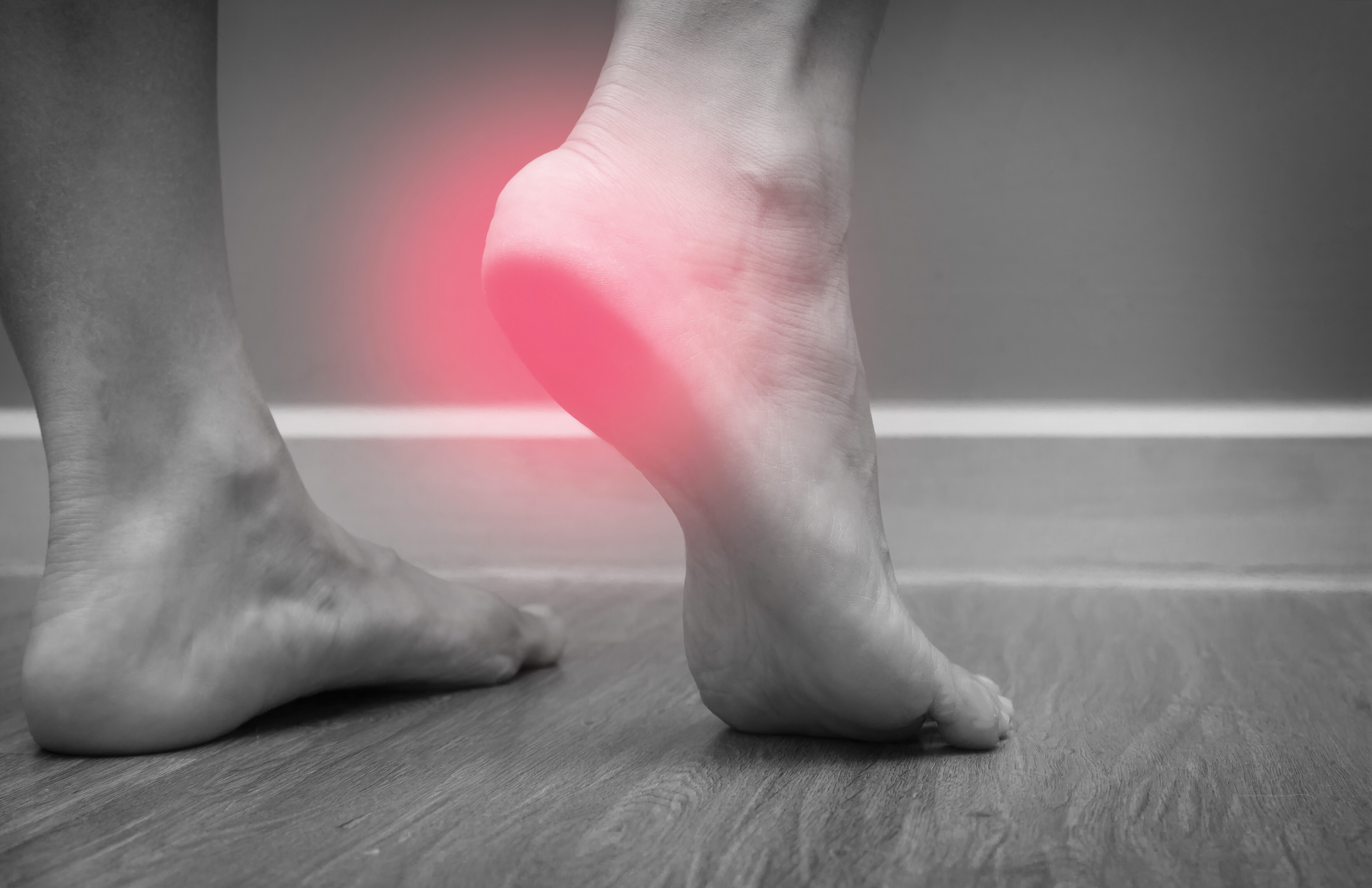 Why Your Heels Hurt Like Mad Stepping Out of Bed