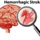 How Long Can Brain Aneurysm Leak or Bleed Before Bursting?