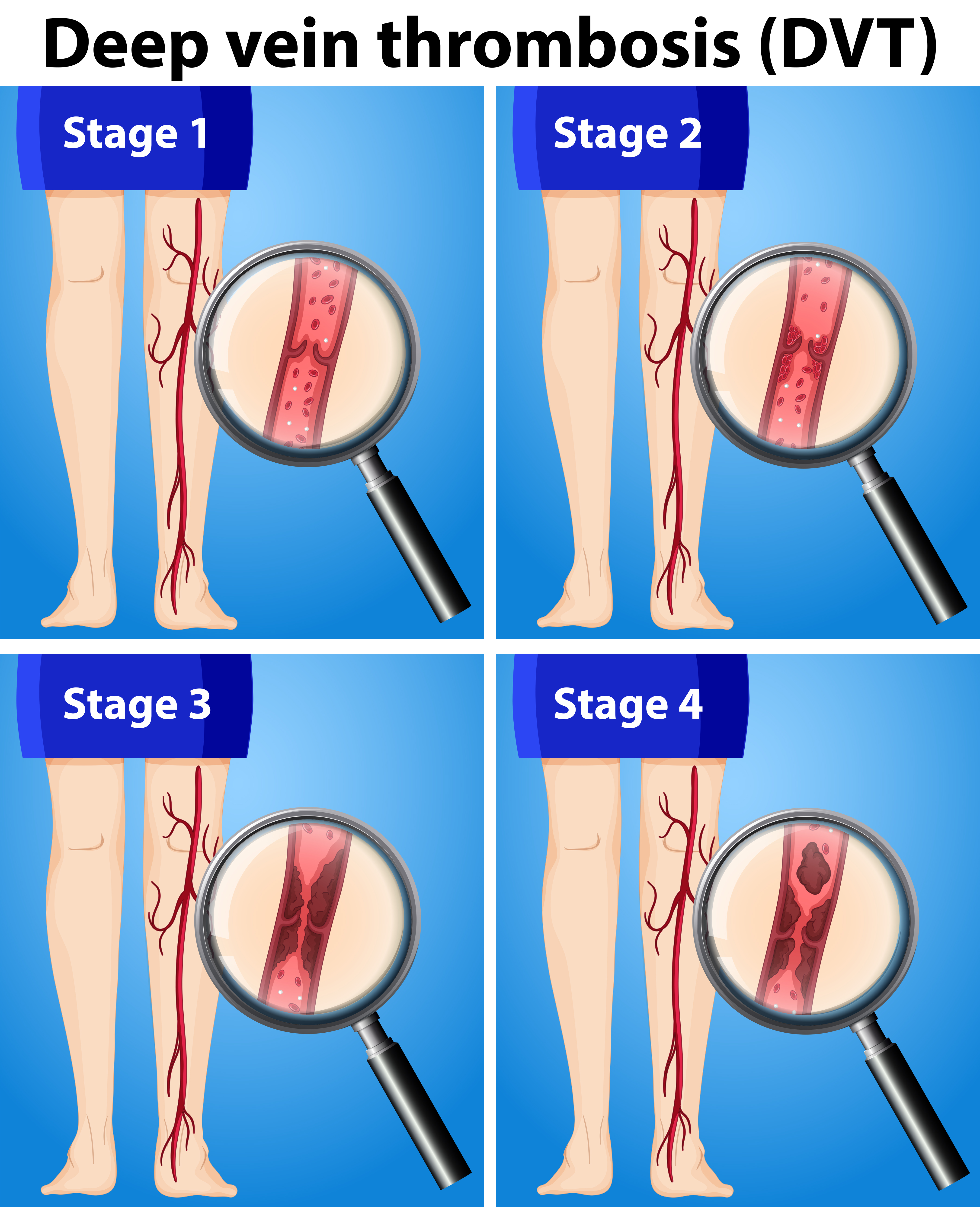 How Many People Get DVT While Not on Blood Thinners?