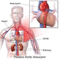 Lift Weights Safely with Aortic Aneurysm; Burn Fat with Panaerobics