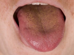 Yellow Tongue Causes: Is One Cancer?