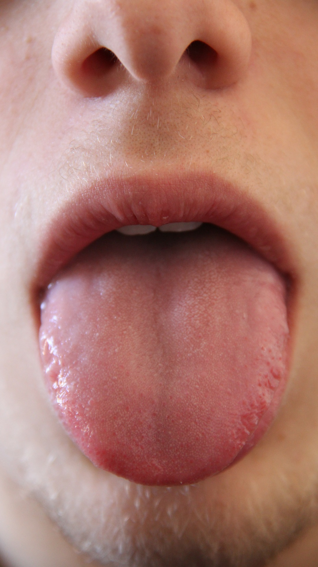 Tongue Problems? Here's What's Wrong.