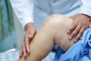Pain After Total Knee Replacement: Your Course of Action
