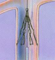 Should an IVC Be Placed in Every Joint Replacement Patient?