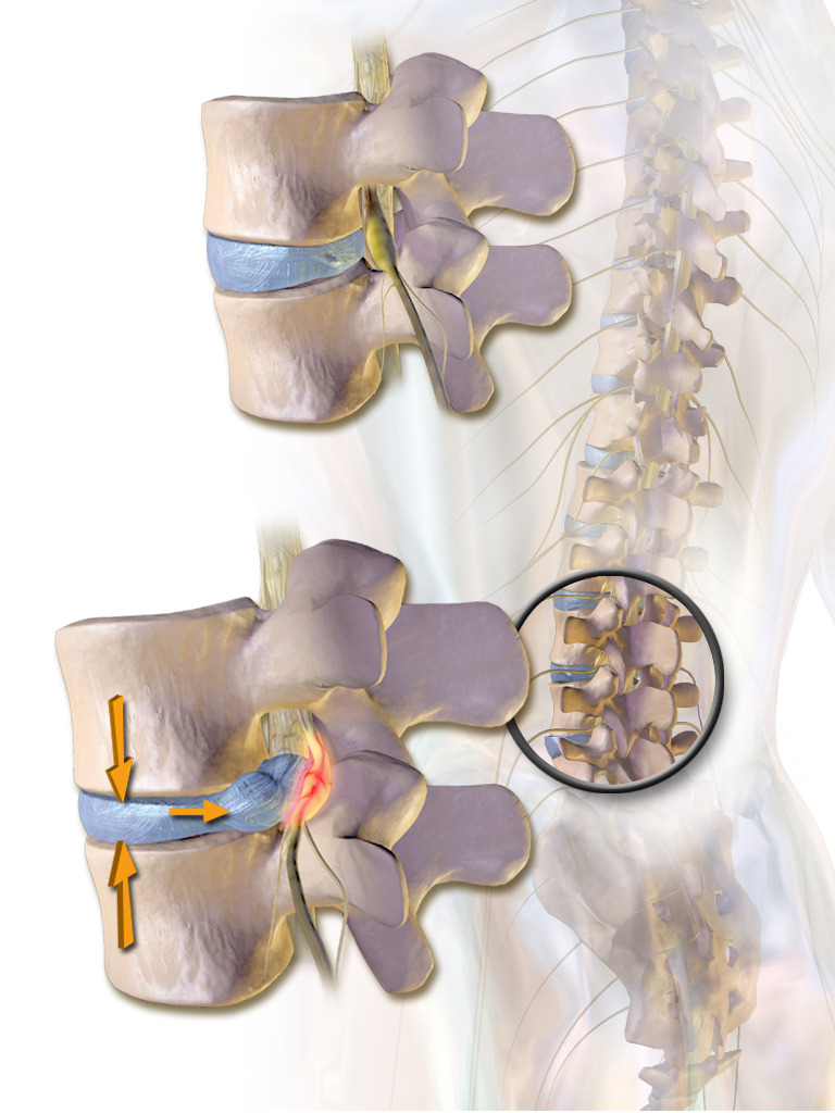 Can a Bulging Disc Be Untreatable?