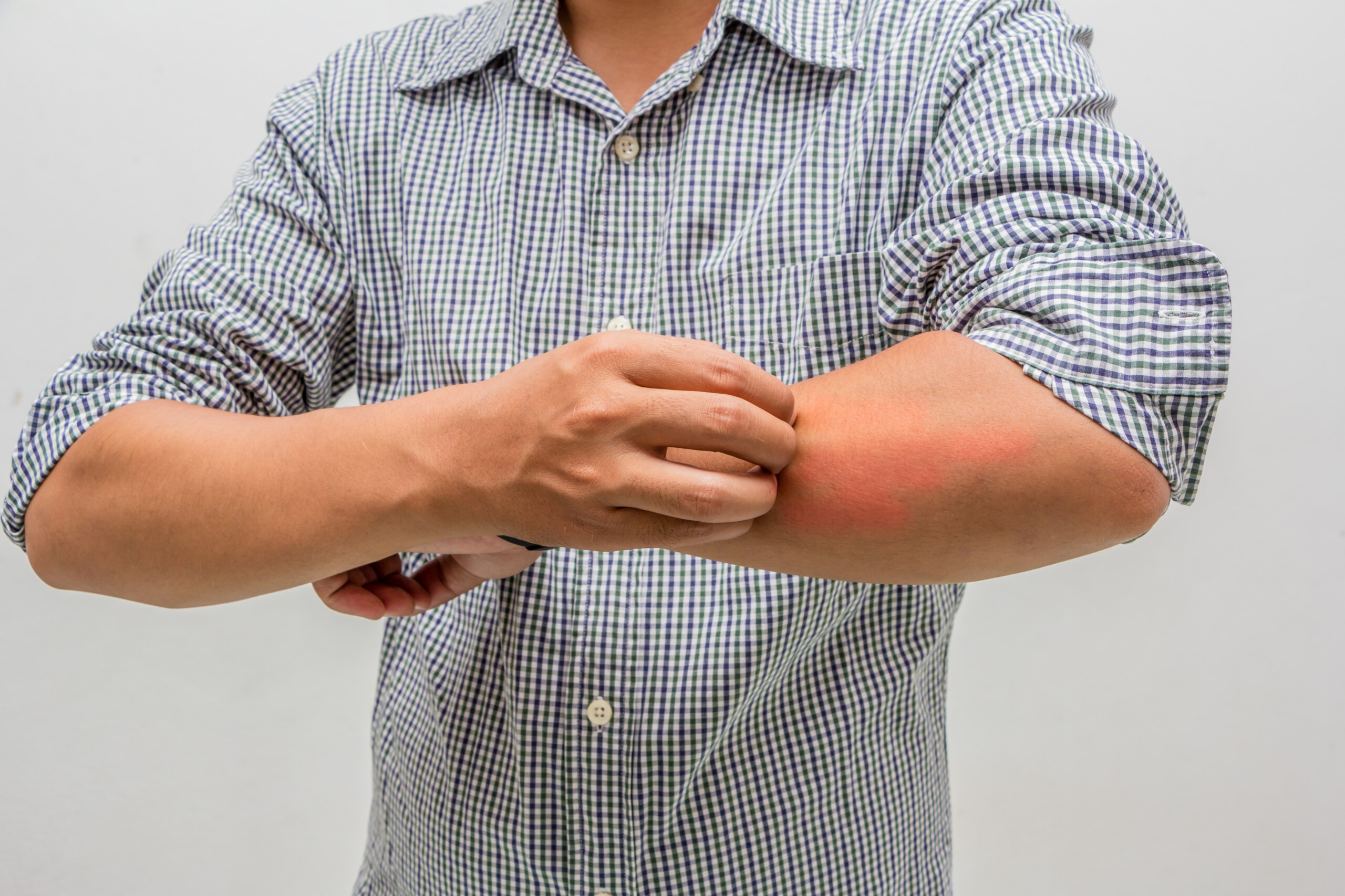 Itchy Arms and Legs in Winter: Causes & Solutions