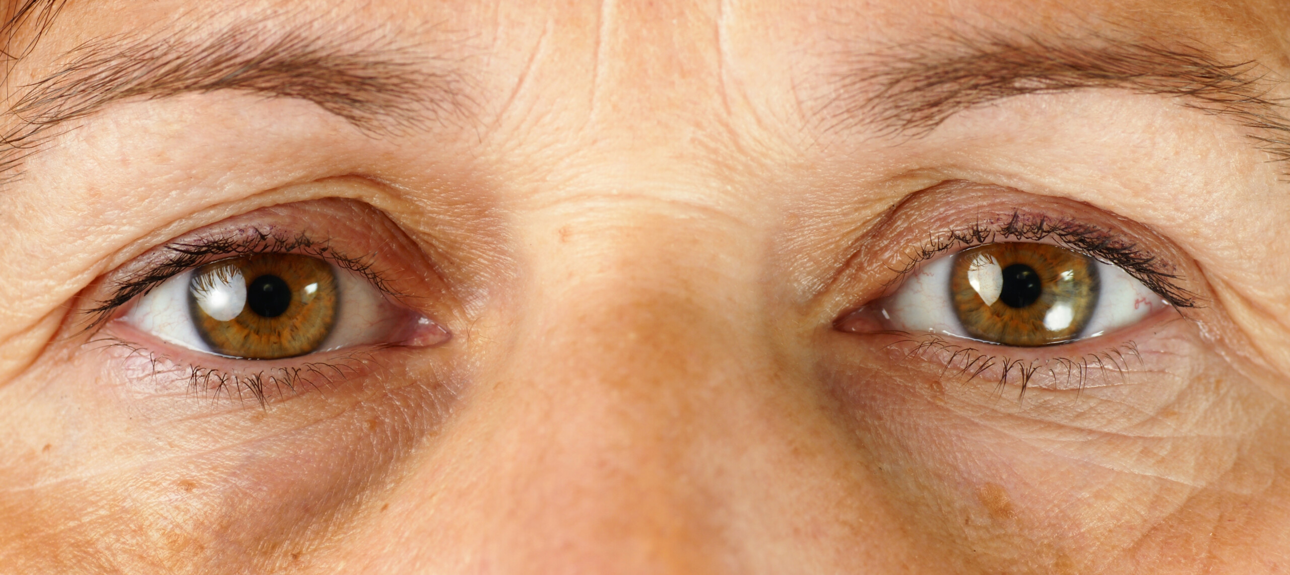 Under-Eye Wrinkles: Have Surgery; TCA Peel Won't Work