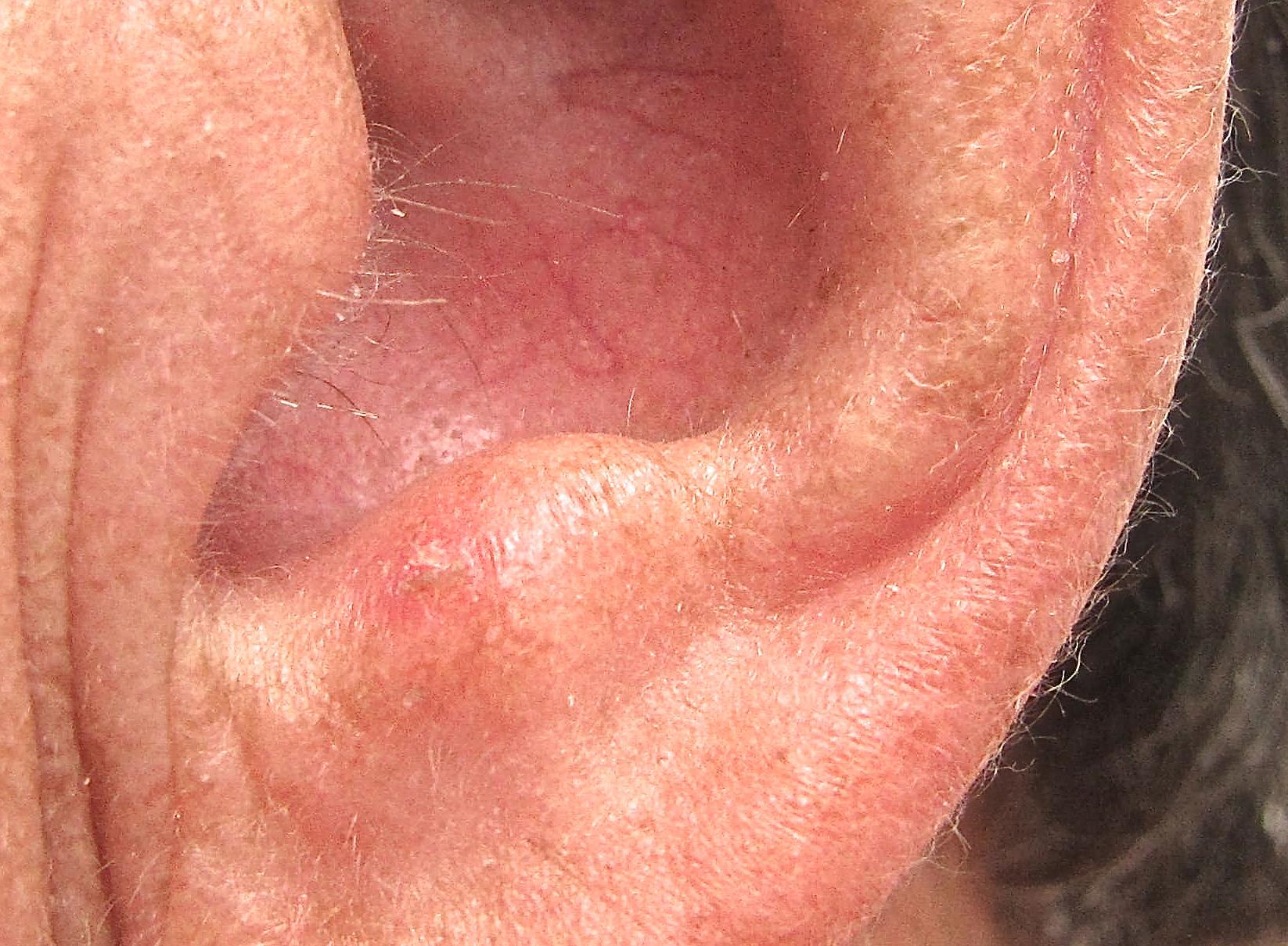 Panicking Over a Diagnosis of Actinic Keratosis?