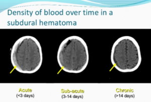 Signs of Chronic Subdural Hematoma Recurrence