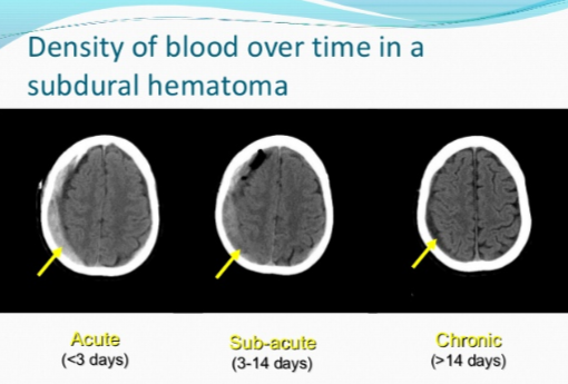 Time of Day Chronic Subdural Hematoma Symptoms Usually Start?