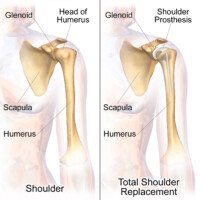 Can Younger Adults Benefit from Shoulder Replacement Surgery?