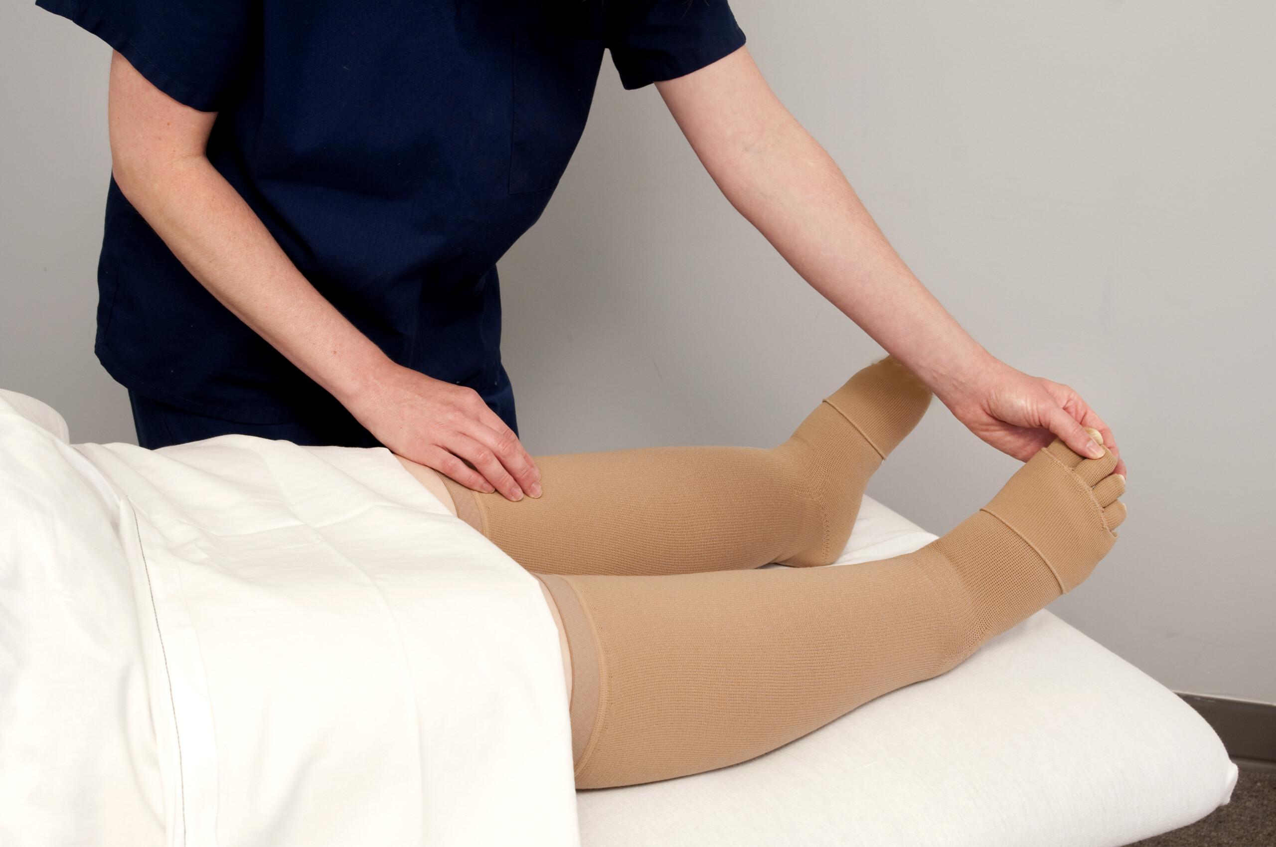 Can Leg Edema Cause a Deep Vein Thrombosis (DVT) ?