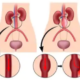 ABDOMINAL AORTIC ANEURYSM: Surgery, Drugs, Watchful Waiting