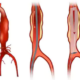 What's the Death Rate of Abdominal Aortic Aneurysm Repair?