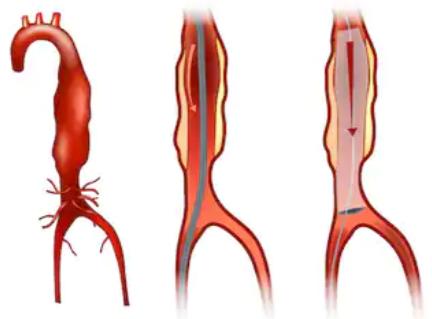 What's the Death Rate of Abdominal Aortic Aneurysm Repair?