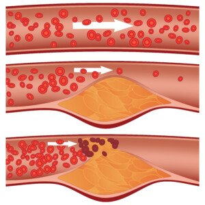 Can Exercise Cause Soft Plaque to Rupture?
