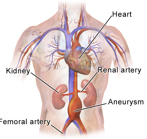 How Often Should Small Abdominal Aortic Aneurysm Be Followed?