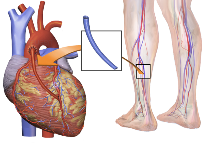 Coronary Bypass Surgery Post-op Complications that Seem Scary