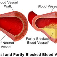 Can You Have Low Calcium Score with Blocked Arteries?