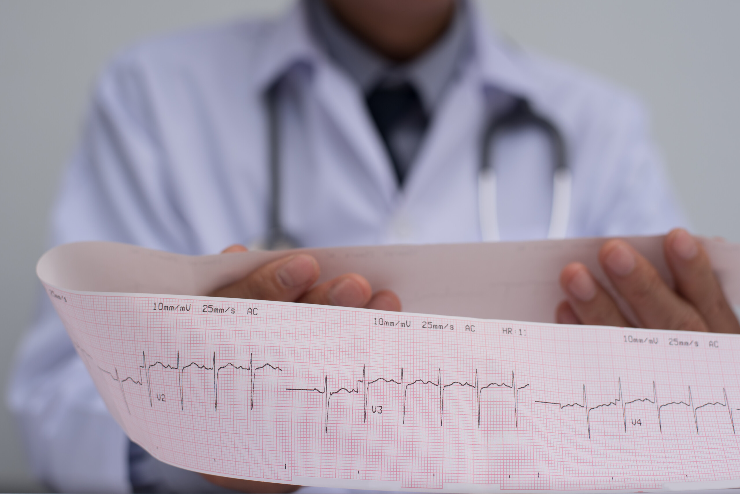 Does Every Episode of Atrial Fibrillation Damage the Heart ?