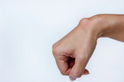 Simple and Quick Ganglion Cyst Pain Exercises