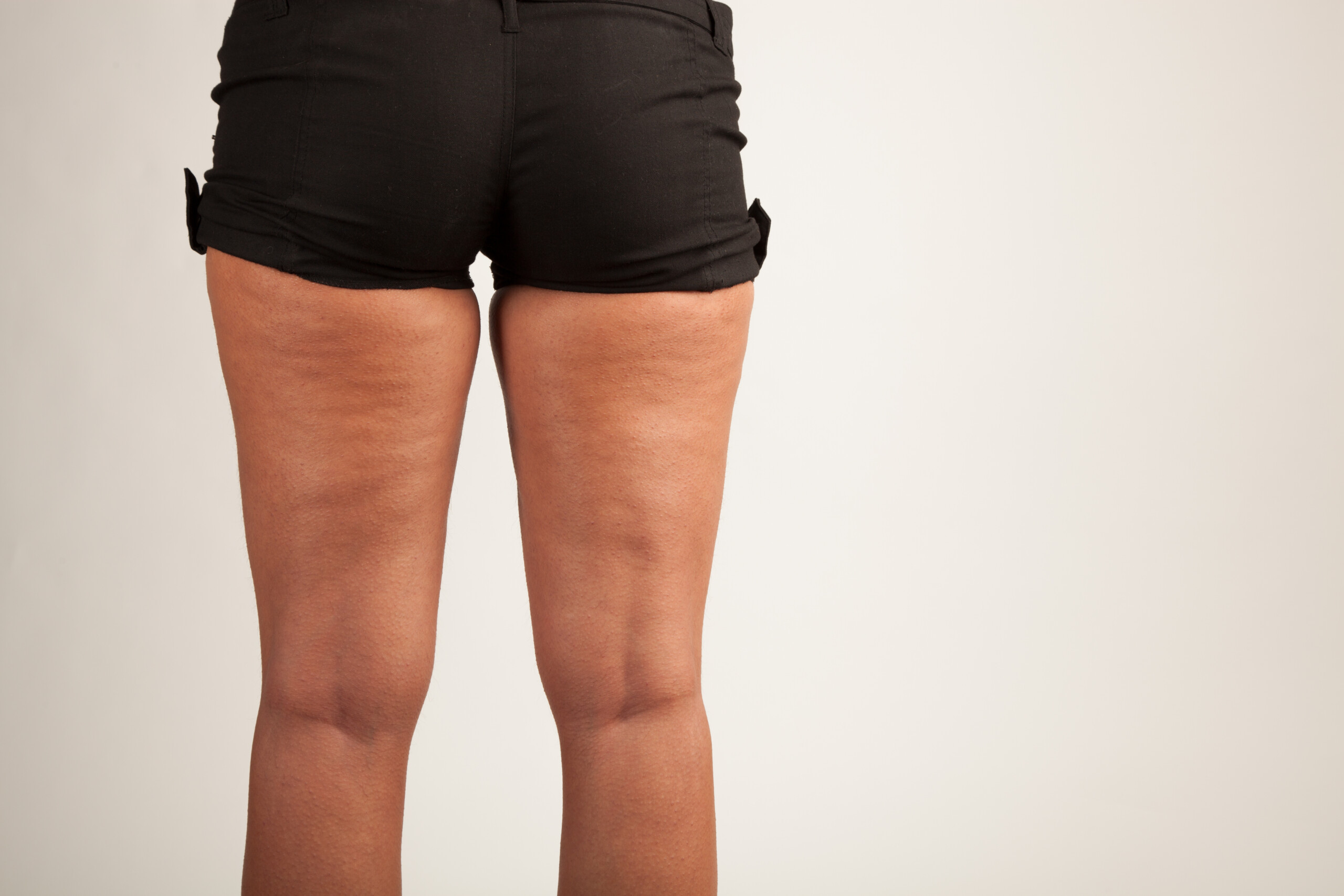 Get Rid of Cellulite with Burst Exercise
