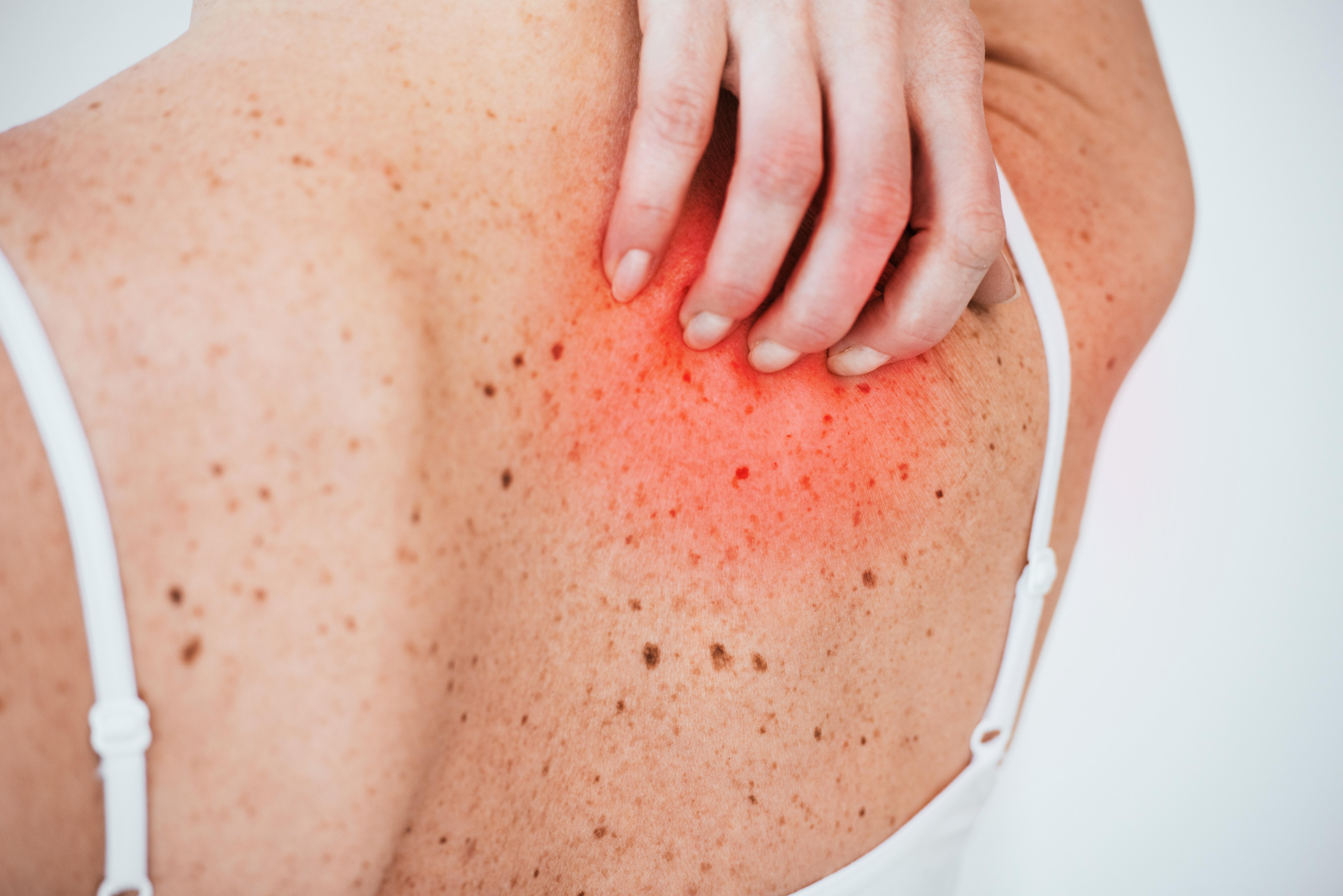 Scratch Mole, It Bleeds: Melanoma?