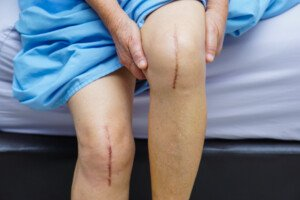 Knee Replacement DVT: Patients at Highest Risk?