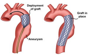 Abdominal Aortic Aneurysm: Endovascular vs. Surgical ...