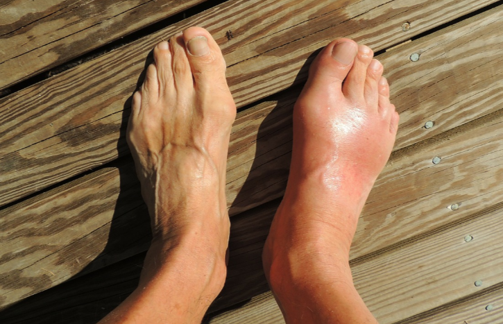 Does DVT Risk Increase with a Cast or Splint?