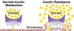 INSULIN RESISTANCE: Dangerous Harbinger to Diabetes