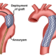 Why Can't Stent Grafts Repair Ascending Aortic Aneurysm?