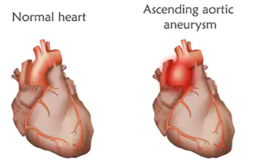 Do Thoracic Aortic Aneurysms Have a Genetic Cause?