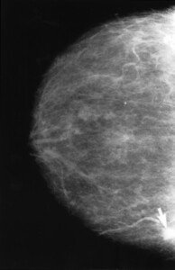 Breast Cancer Risk in Pear vs. Apple Shaped Women