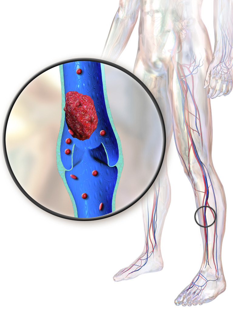 Can a DVT Go Away on Its Own?