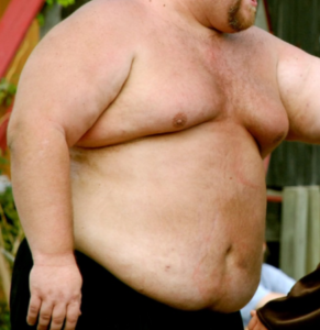 Can Obesity Itself Cause Bleeding Belly Button Scary Symptoms