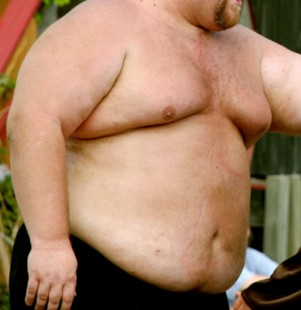 Can Obesity Itself Cause a Bleeding Belly Button?