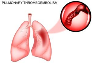 Should SVC Be Used Post-CABG to Prevent Pulmonary Embolism?