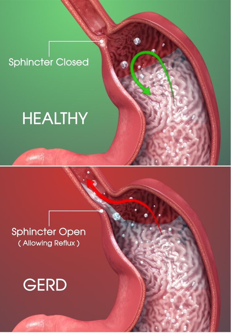 How Many Esophageal Cancer Patients Had Untreated GERD?